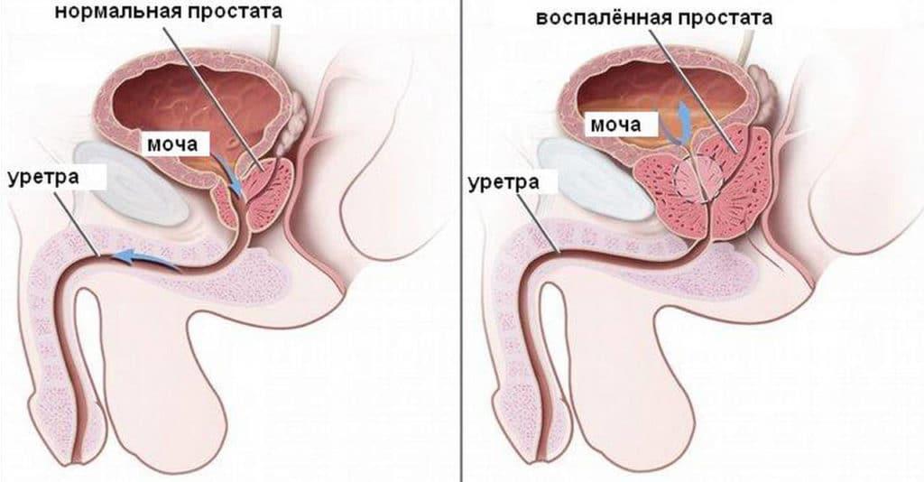 Симптомы начинающегося простатита, как он развивается
