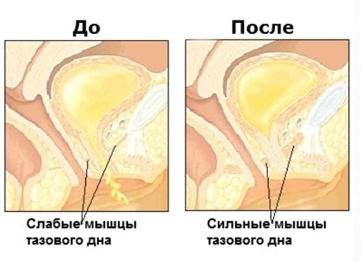 слабые и сильные мышцы таза