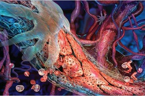Тянущие боли в яичках при простатите как лечить баланопостит при хроническом простатите
