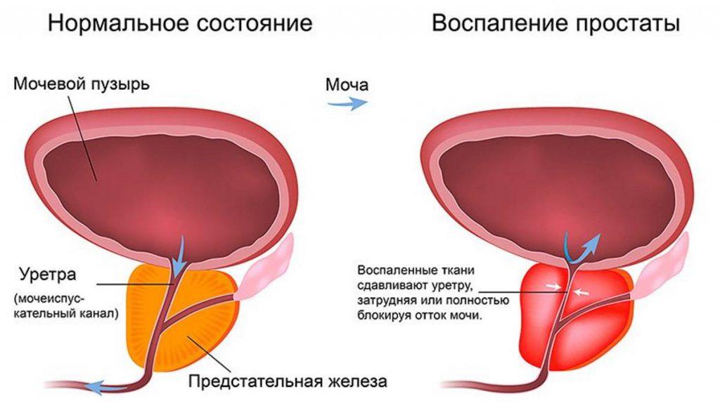 Схемы, изображающие простату в нормальном и воспаленном состояниях