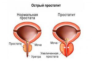 Острый вид простатита