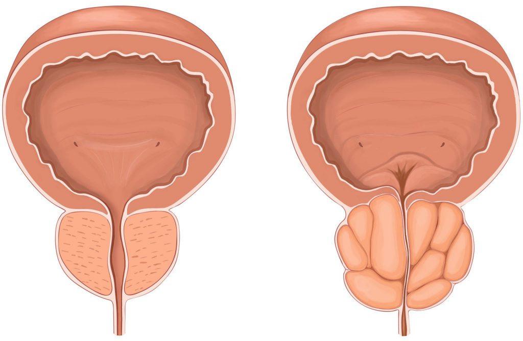 слева— простата в норме, справа— состояние органа при аденоме