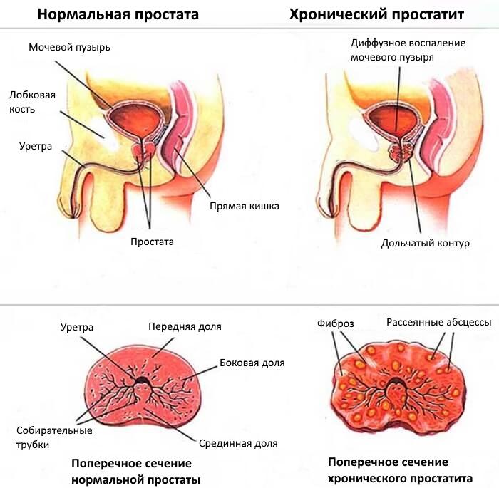 нормальная простата и хронический простатит