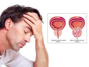 Аденома простаты как последствие хронического простатита