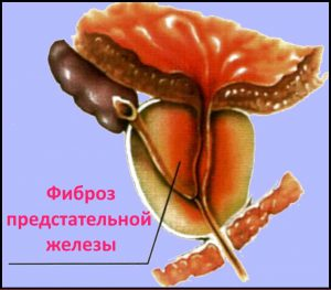 Фиброз простаты при осложнении простатита