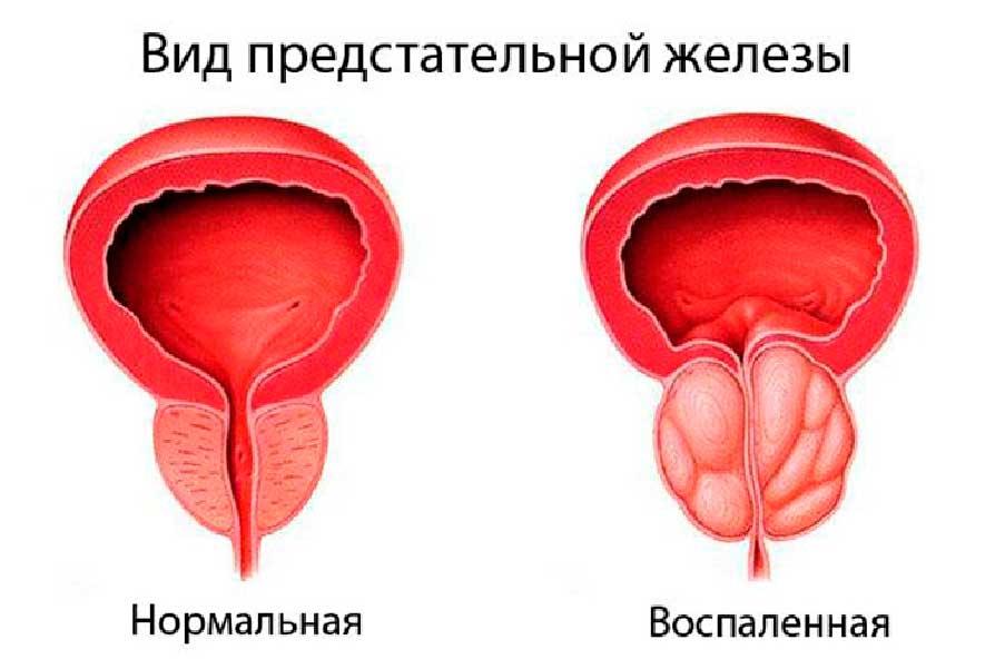 Простатит влияние температуры простатит частое мочеиспускание у