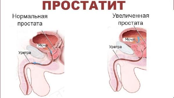 нормальная простата, увеличенная простата, сравнение
